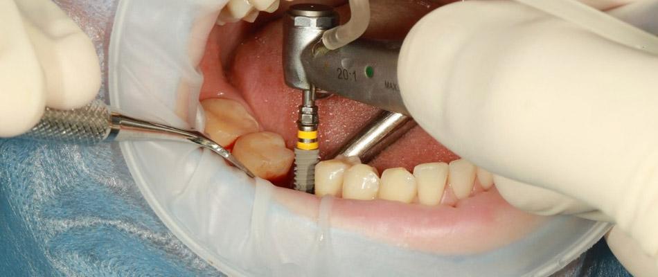 implantologie dentaire